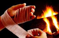 Dicas e cuidados ajudam a evitar e tratar queimaduras